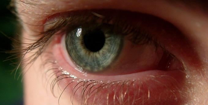 Enfermedades oculares frecuentes