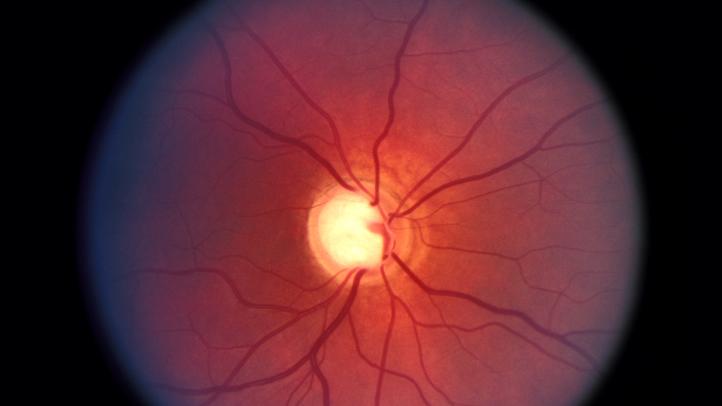 Glaucoma de ángulo estrecho