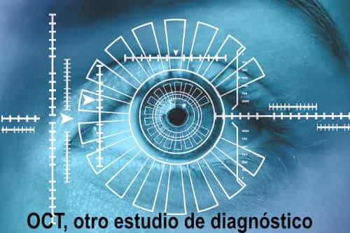 Estudio OCT - Glaucoma