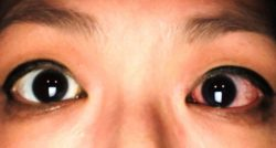 Gotas para el ojo rojo